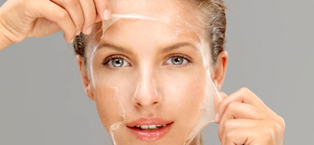 graphic-chemical-peel